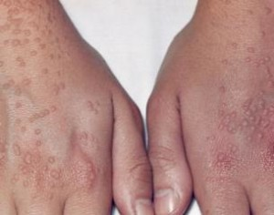 Warts Causes, Symptoms, Treatment - Wart Treatment ...