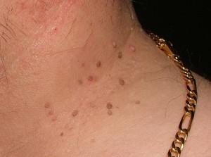Cómo Quitar Verrugas Planas en el Cuello con Remedios Caseros